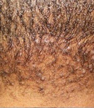 AKN Service - Dr U Hair And Skin Clinic