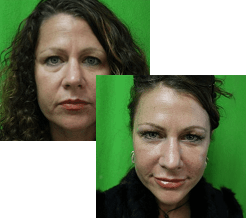 Before And After Skin Success - Dr U Hair And Skin Clinic