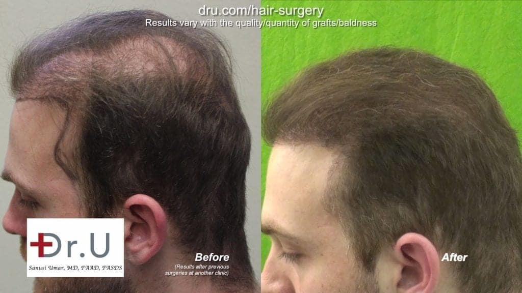 Highly successful strip surgery hair transplant repair using 6500 UGrafts
