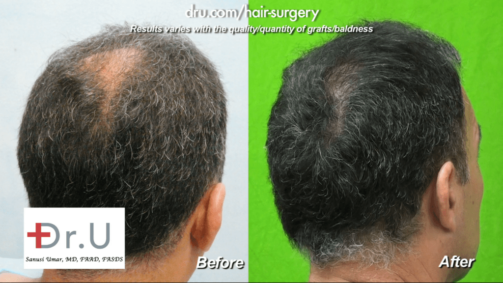 The patient now has considerable coverage on the crown of his head thanks to Dr. Umar and his DrUGraft method.
