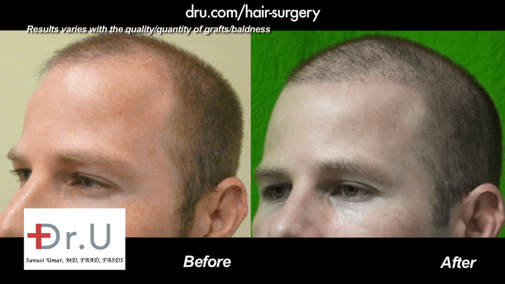 A hairline is now defined in this hair transplant patient of Dr. U in Redondo Beach.*