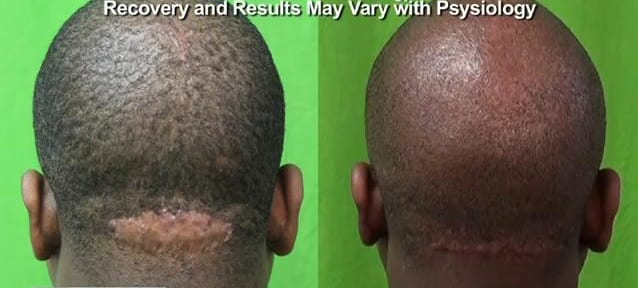 Dr U AKN Removal Surgery Scar Revision Result