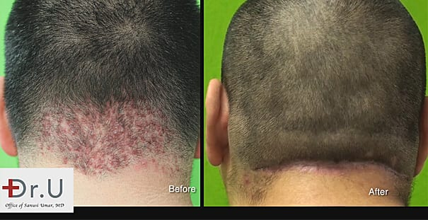 Back of Head Bumps Surgically Cured By Dr U - Before and after photo