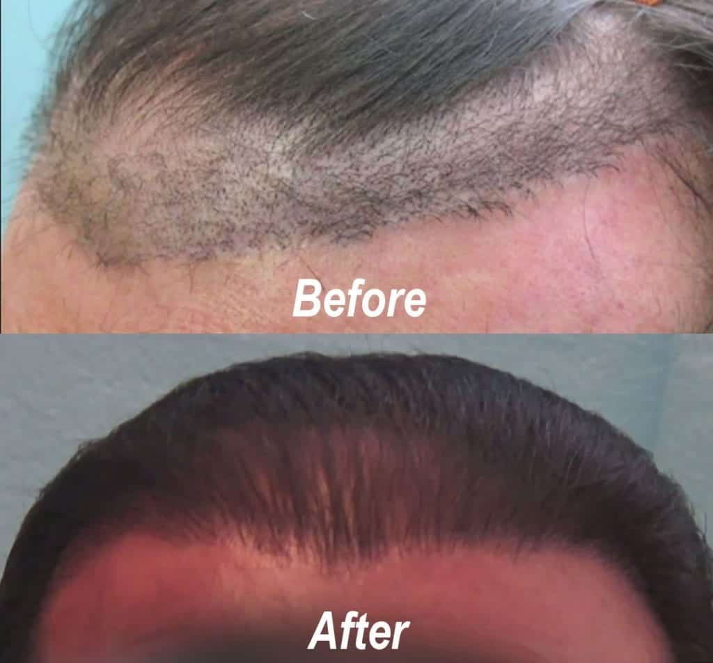 This patient had a very unnatural hairline after a juri hair flap surgery at a different clinic. The after photo shows how Dr. Umar created a much more natural hairline for this patient.*