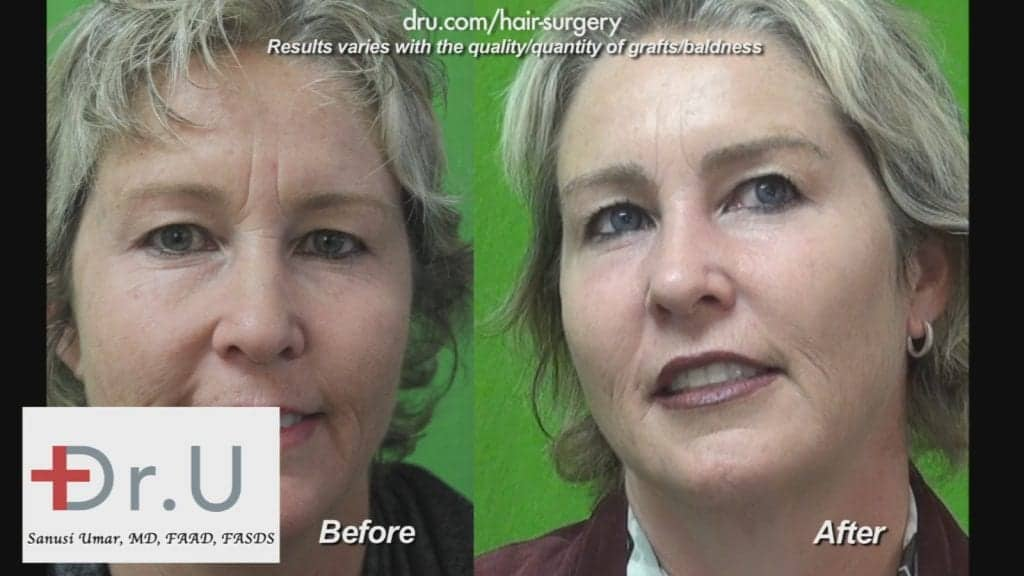 This woman is showing off her fuller and thicker eyebrows after Dr. U's eyebrow transplant surgery.