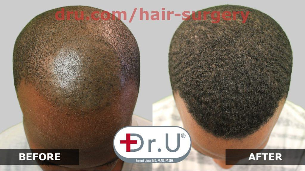 This patient had scarring in the front of his head from a childhood condition. Dr. Umar and his patented DrUPunch Curl gave this patient the hairline he always wanted.*