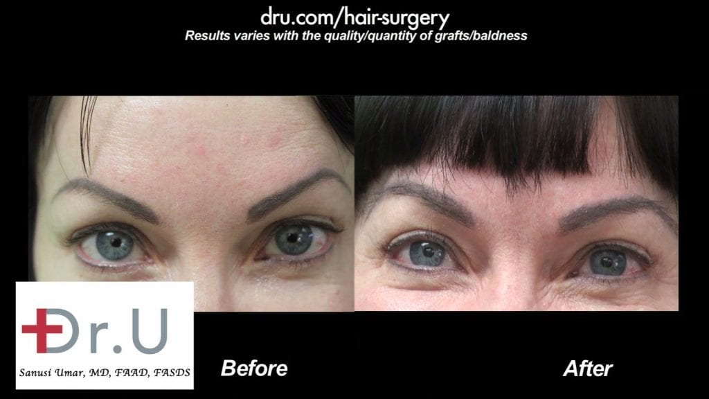 Before and After - 450 Nape Hair DrUGrafts Solution For Eyebrow Restoration