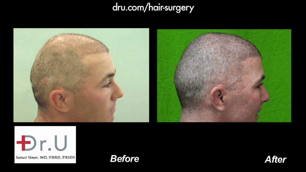 NW6 Baldness corrected with 13,500 Grafts