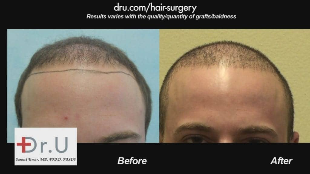 Dr. U in Los Angeles created a lower and fuller hairline for this patient.