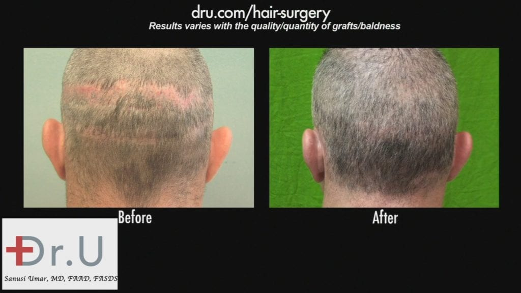 Before and after photos of a patient of Dr. Uma who had significant scarring on the back of his head.