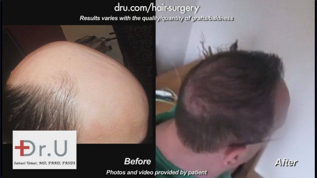 The results of this Norwood 7 patient who received a hair transplant by Dr. U in Los Angeles.