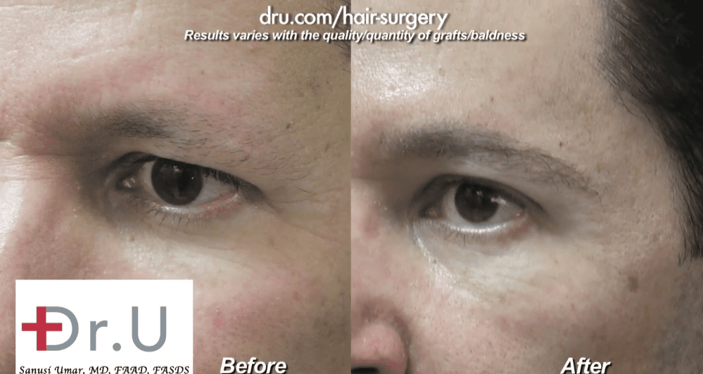 Side view of male eyebrow restoration using leg hair for donor grafts