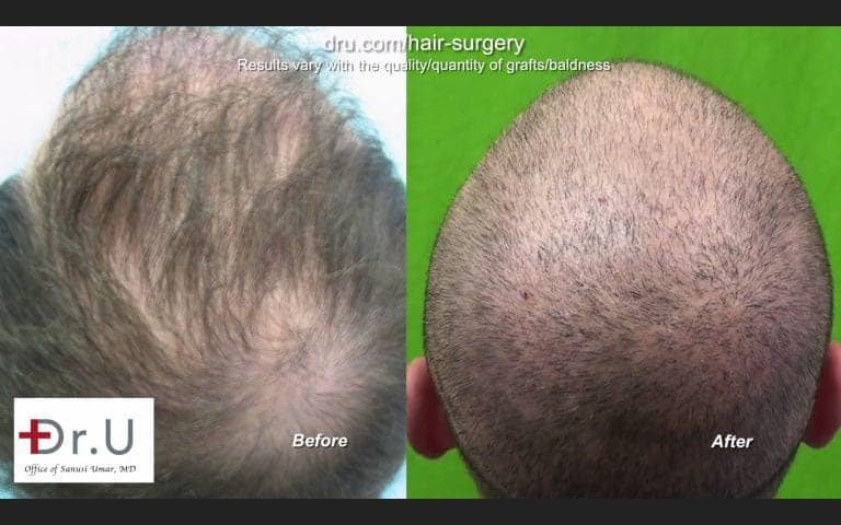Hair graft quality is illustrated by the hair transplant growth yield experienced by patients *