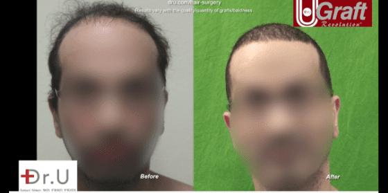 Dr. U performs a hair transplant using beard hair, restores NW6 hair loss successfully
