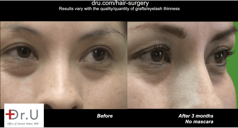 Three months after her lash enhancement procedure, the patient reached her goal to get longer eyelashes