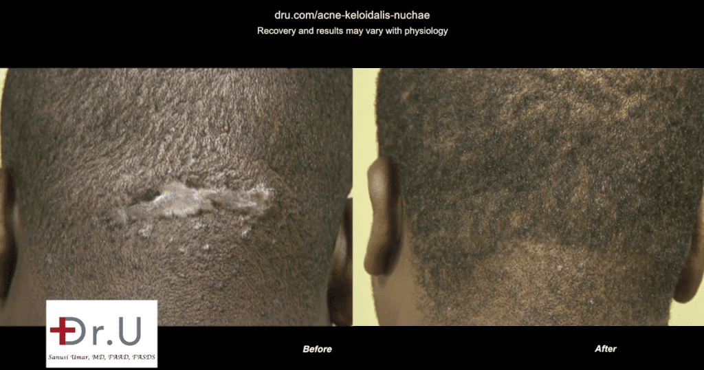Surgery to Remove AKN Razor Bump Completely