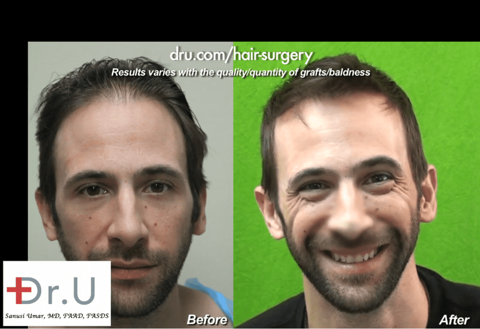 Hollywood, Los Angeles patient before and after his celebrity hair restoration