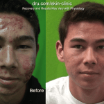 Dr. U's patient with cystic acne before and after his treatment with PDT therapy