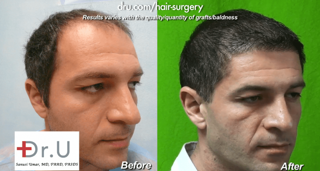Thinning Hair Transplant Results - 10000 Grafts of Head and Beard Hair Extracted with Dr. UGraft Device