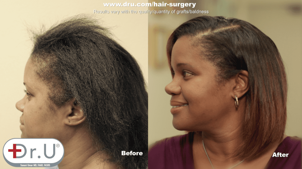 What's the best treatment for traction alopecia? According this happy patient, its a Dr.UGraft linear scar-free FUE hair transplant.