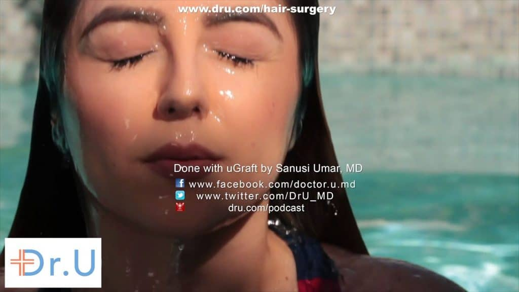 Advantage of Veelash Method of Eyelash Transplantation, A Patient's Story