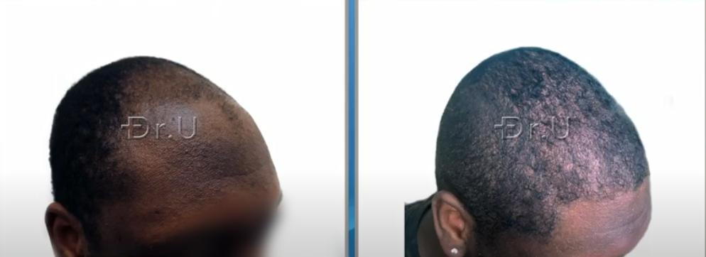 3000 Graft Hair Restoration For Black Male in His Twenties